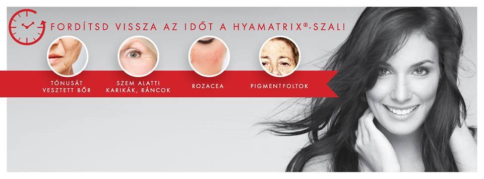 Fordítsd vissza az időt HYAMATRIX®-szal